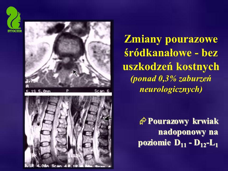 Zmiany pourazowe śródkanałowe - bez uszkodzeń kostnych (ponad 0,3% zaburzeń neurologicznych)