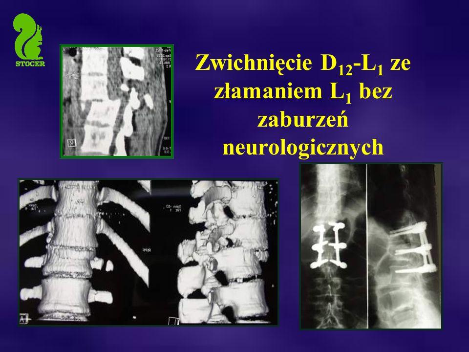 Zwichnięcie D12-L1 ze złamaniem L1 bez zaburzeń neurologicznych