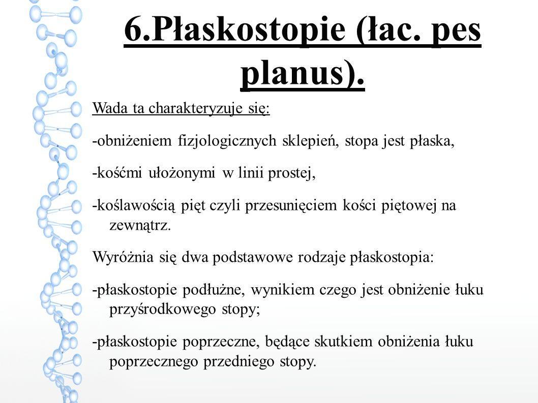 6.Płaskostopie (łac. pes planus).