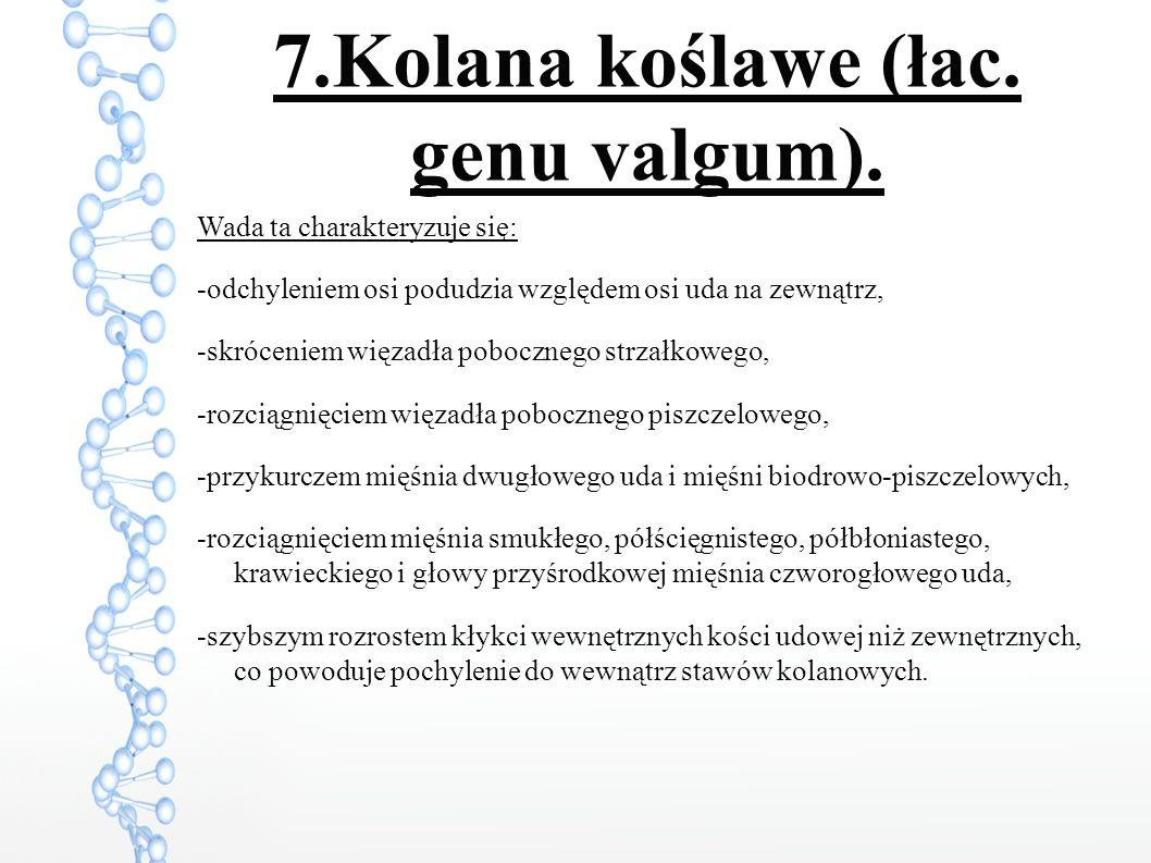7.Kolana koślawe (łac. genu valgum).