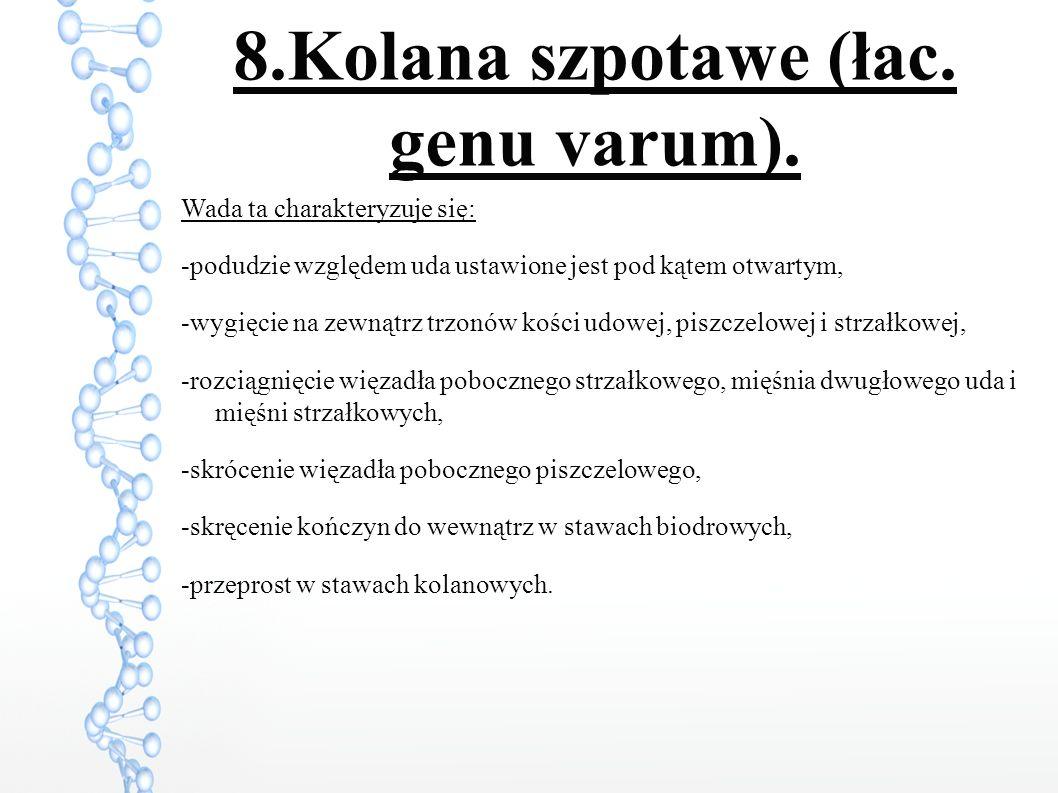 8.Kolana szpotawe (łac. genu varum).