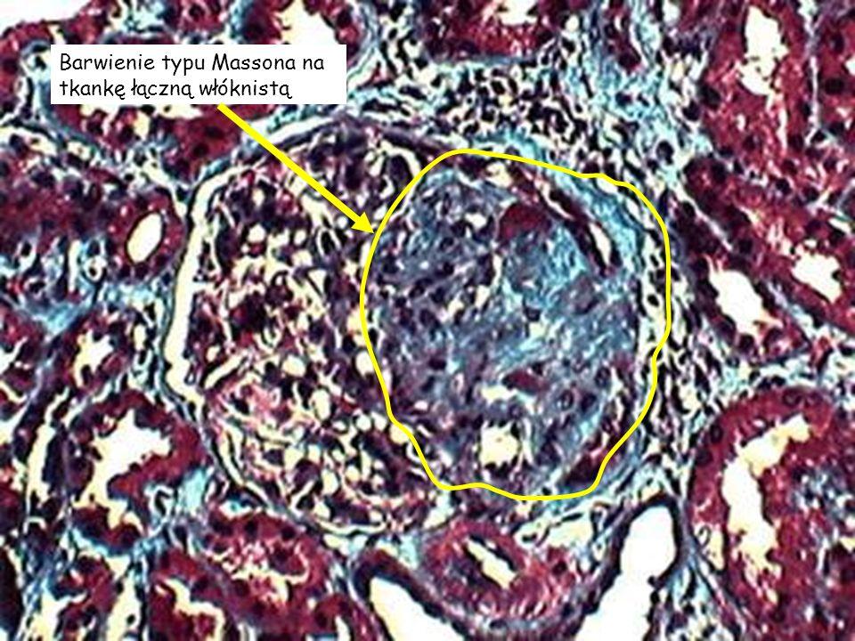 Barwienie typu Massona na tkankę łączną włóknistą