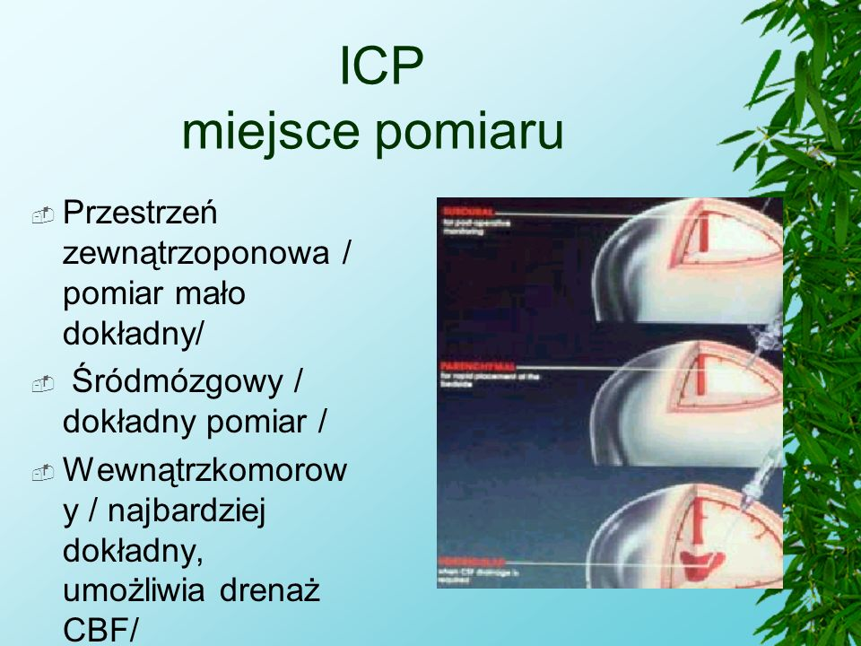 ICP miejsce pomiaru Przestrzeń zewnątrzoponowa / pomiar mało dokładny/