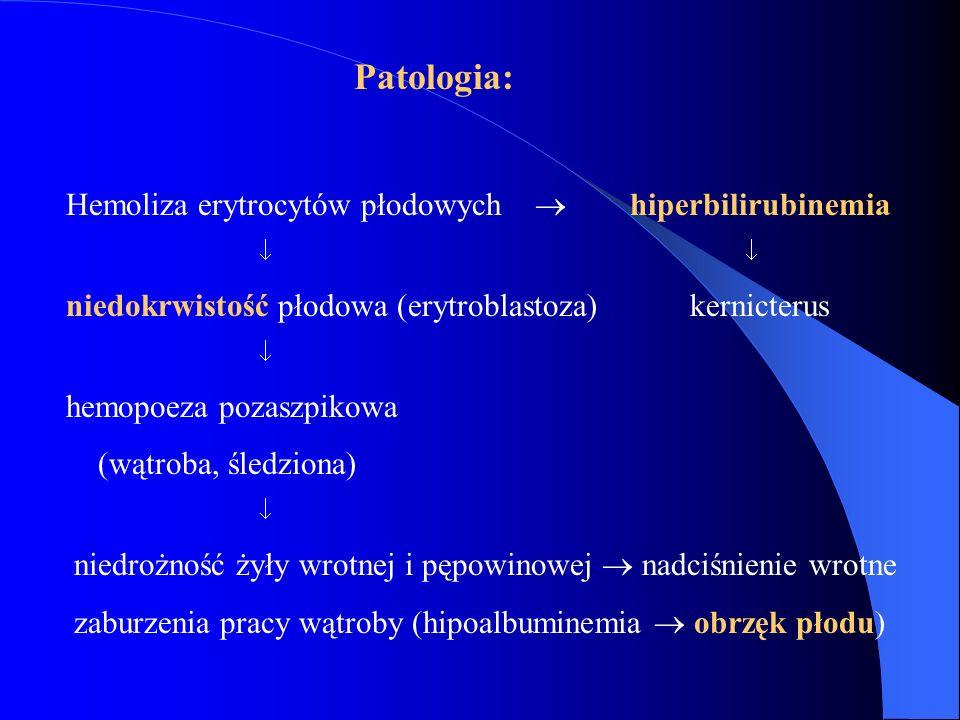 Patologia: Hemoliza erytrocytów płodowych  hiperbilirubinemia