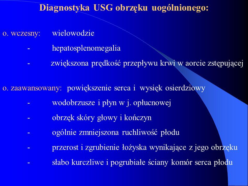 Diagnostyka USG obrzęku uogólnionego: