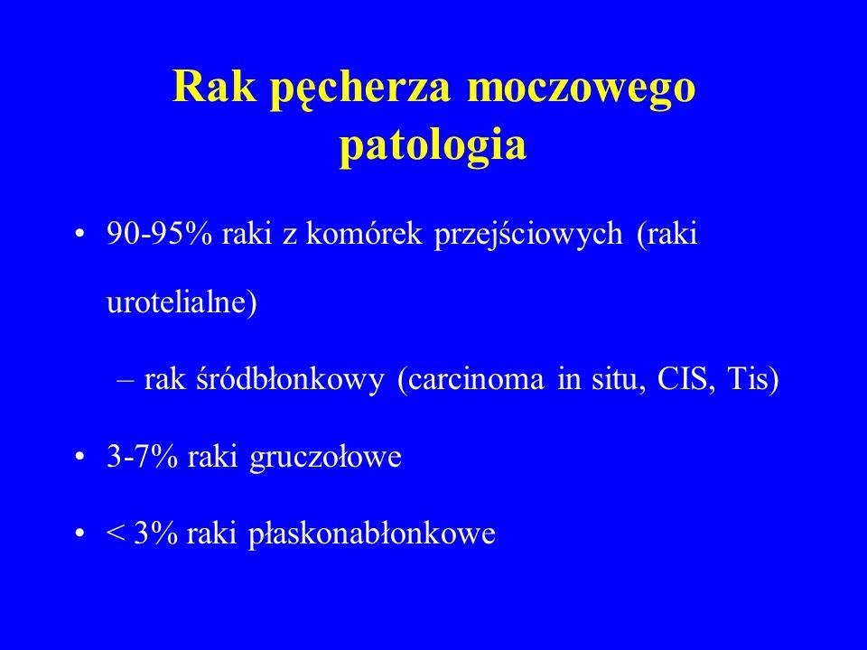 Rak pęcherza moczowego patologia