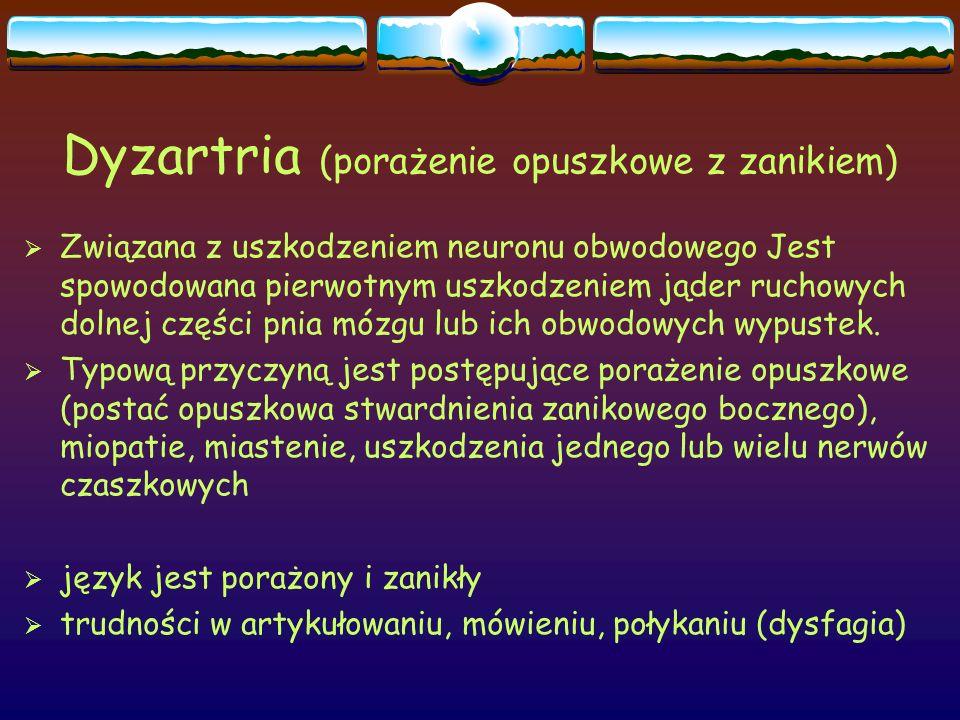 Dyzartria (porażenie opuszkowe z zanikiem)