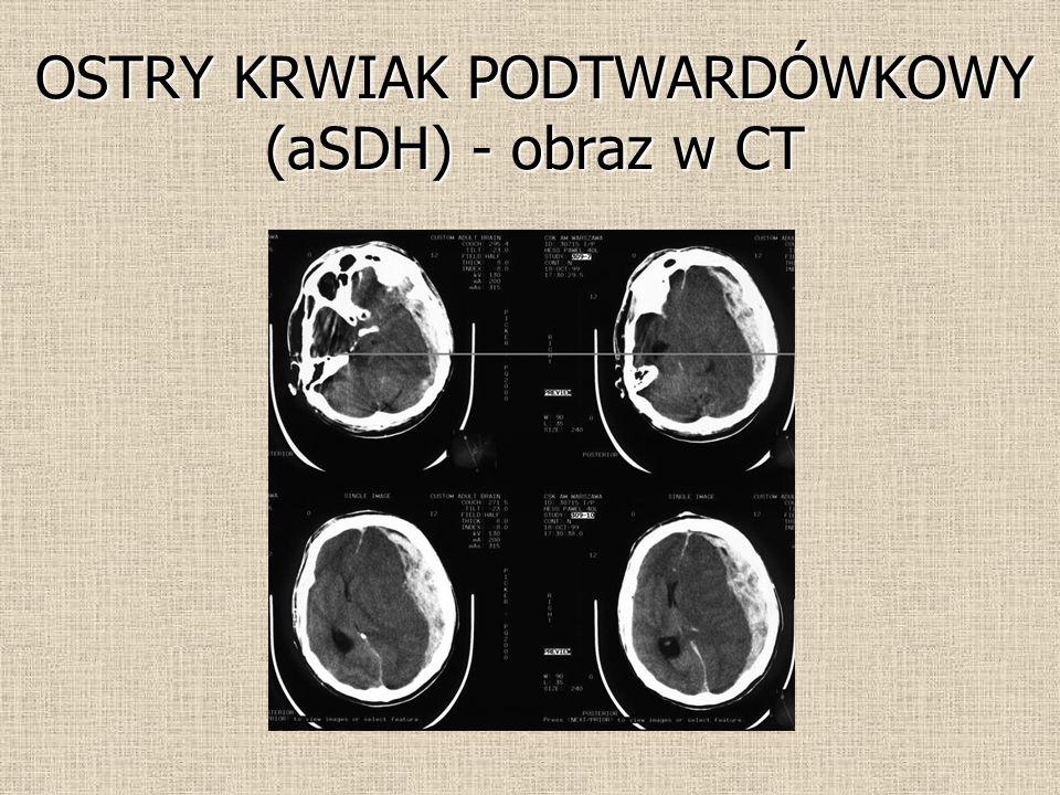 OSTRY KRWIAK PODTWARDÓWKOWY (aSDH) - obraz w CT