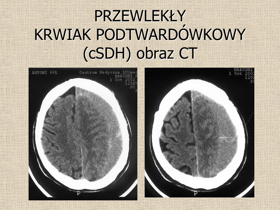PRZEWLEKŁY KRWIAK PODTWARDÓWKOWY (cSDH) obraz CT