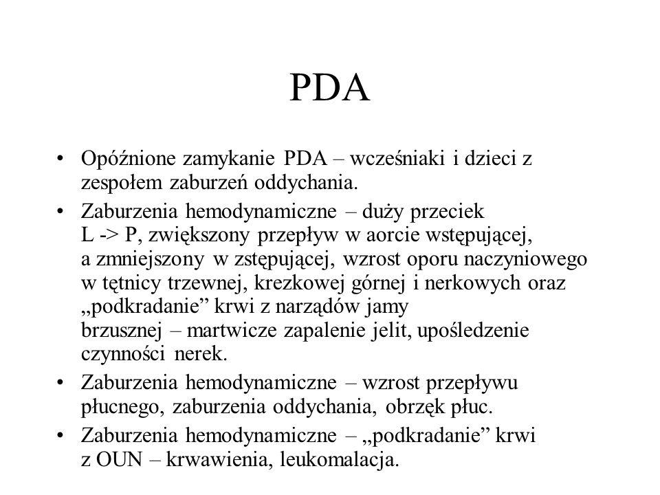 PDA Opóźnione zamykanie PDA – wcześniaki i dzieci z zespołem zaburzeń oddychania.