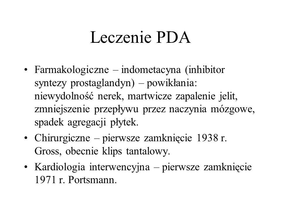 Leczenie PDA