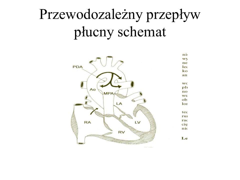 Przewodozależny przepływ płucny schemat