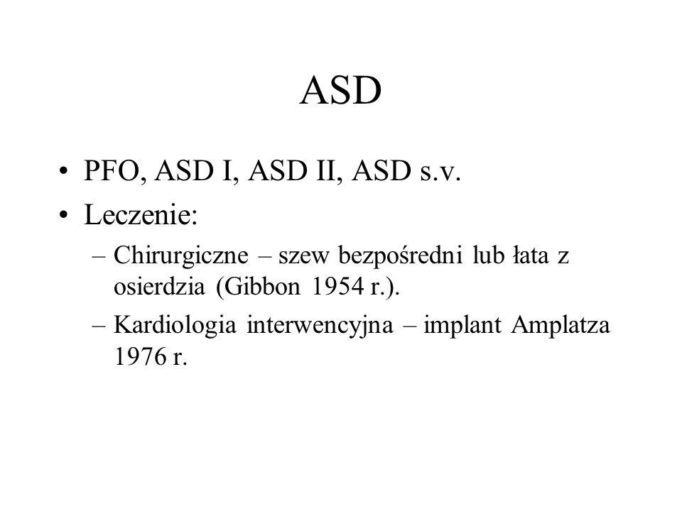 ASD PFO, ASD I, ASD II, ASD s.v. Leczenie: