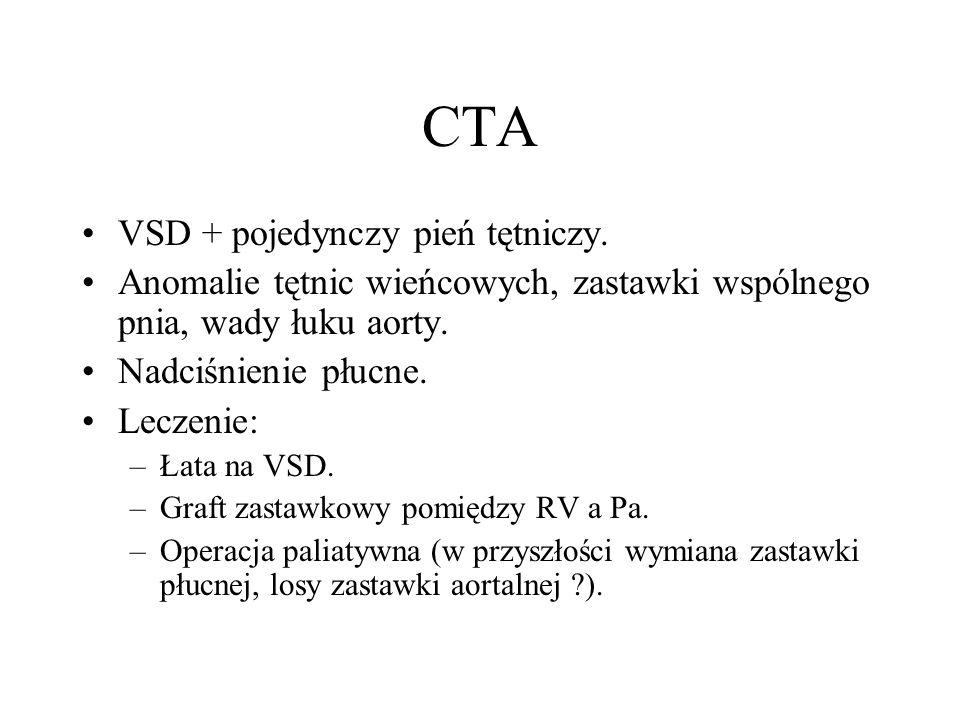 CTA VSD + pojedynczy pień tętniczy.