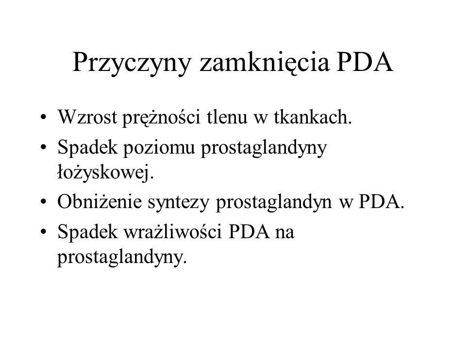 Przyczyny zamknięcia PDA
