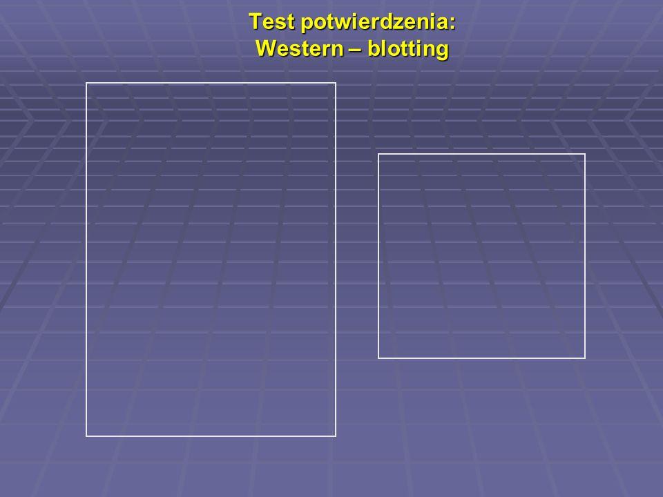 Test potwierdzenia: Western – blotting