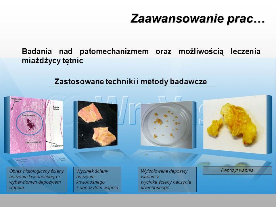 Zaawansowanie prac… Badania nad patomechanizmem oraz możliwością leczenia miażdżycy tętnic. Zastosowane techniki i metody badawcze.