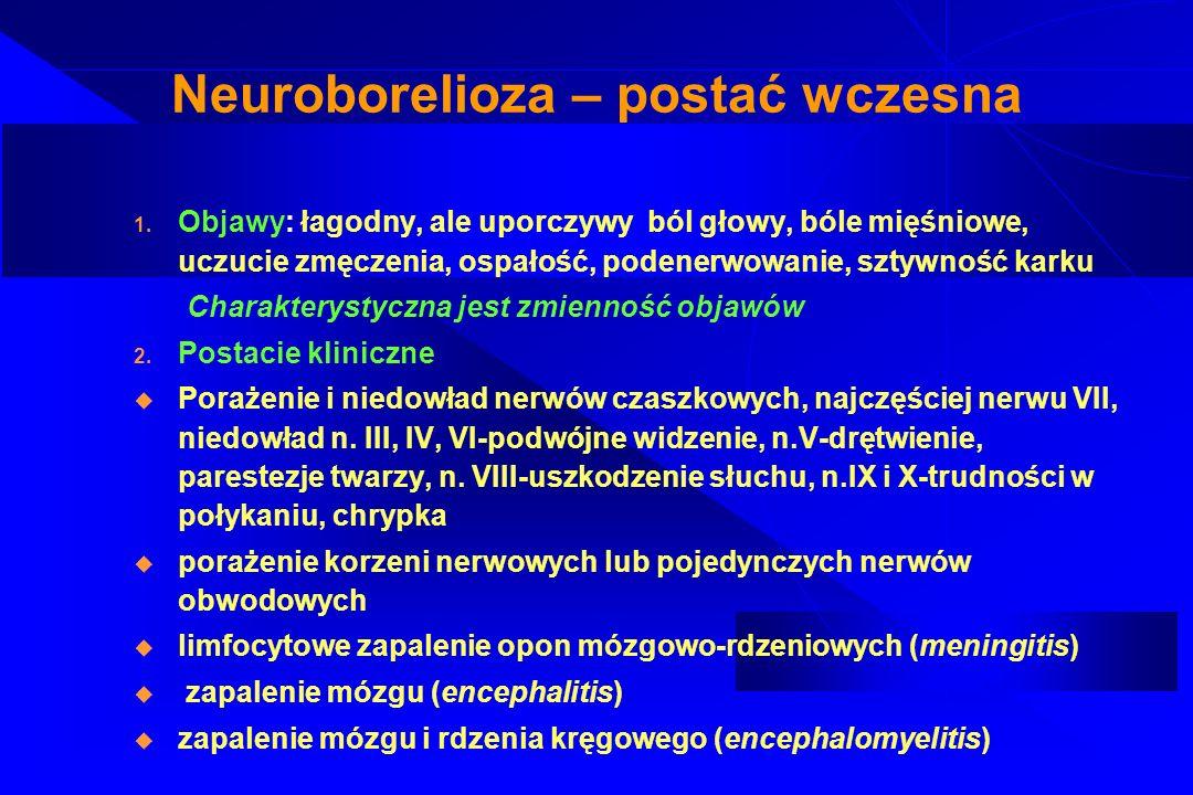 Neuroborelioza – postać wczesna