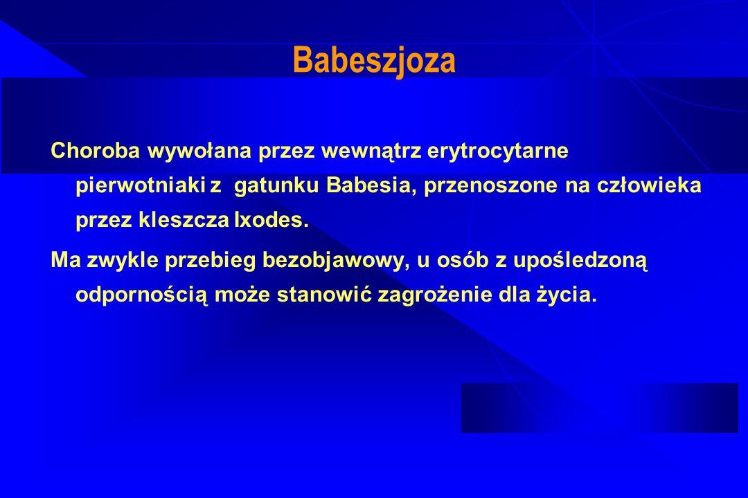 Babeszjoza