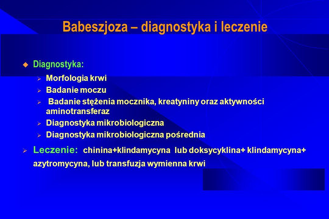 Babeszjoza – diagnostyka i leczenie