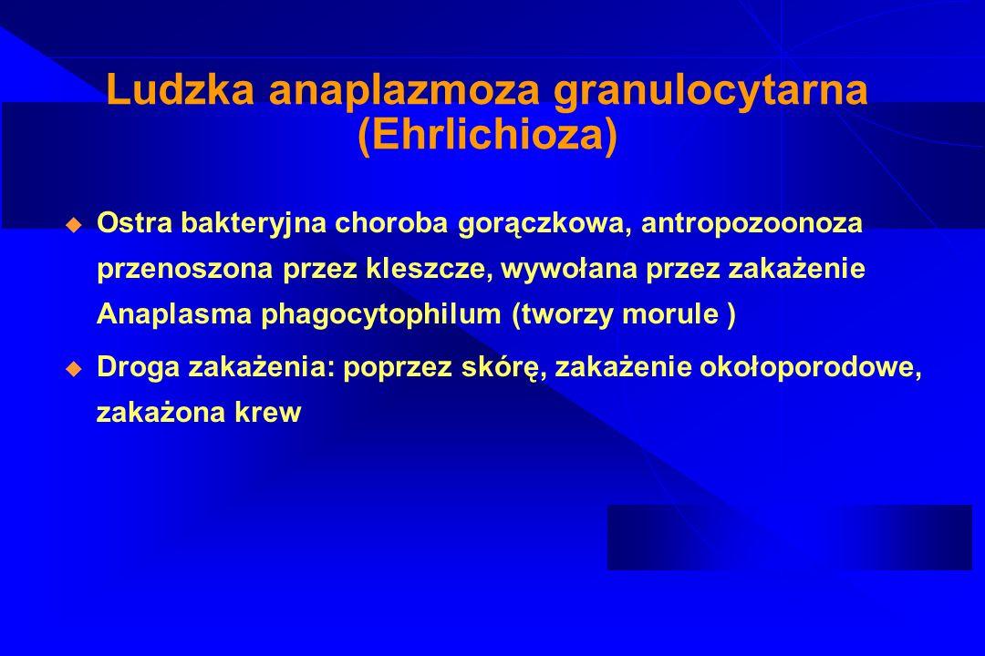 Ludzka anaplazmoza granulocytarna (Ehrlichioza)