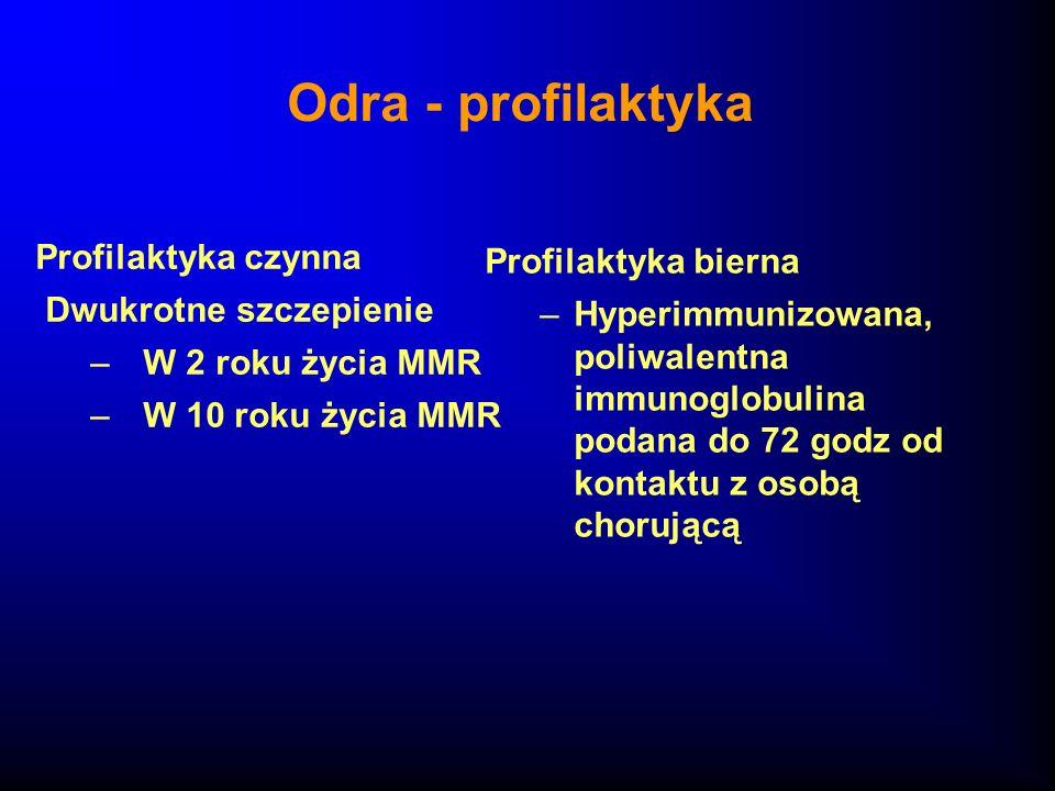 Odra - profilaktyka Profilaktyka czynna Profilaktyka bierna