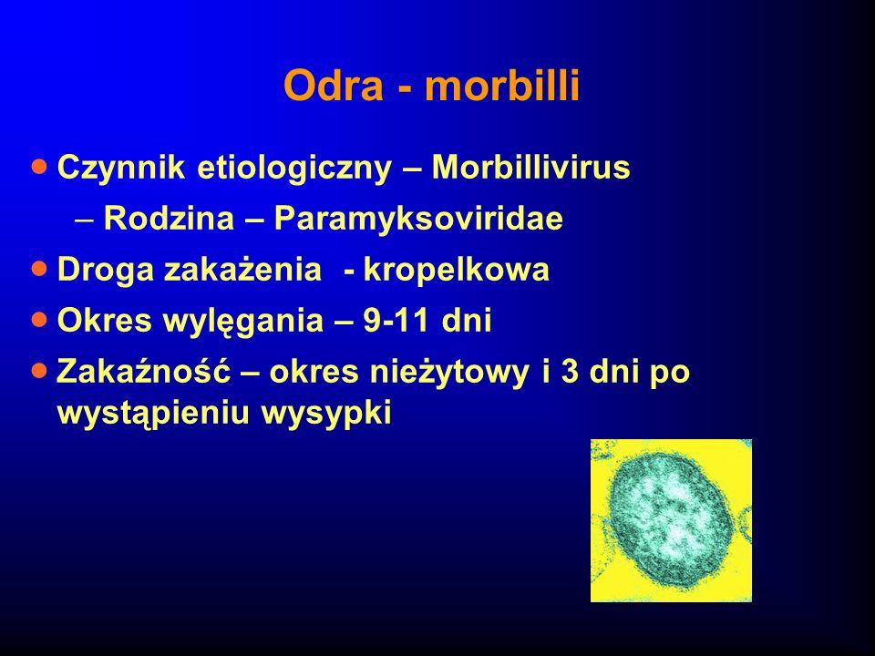 Odra - morbilli Czynnik etiologiczny – Morbillivirus