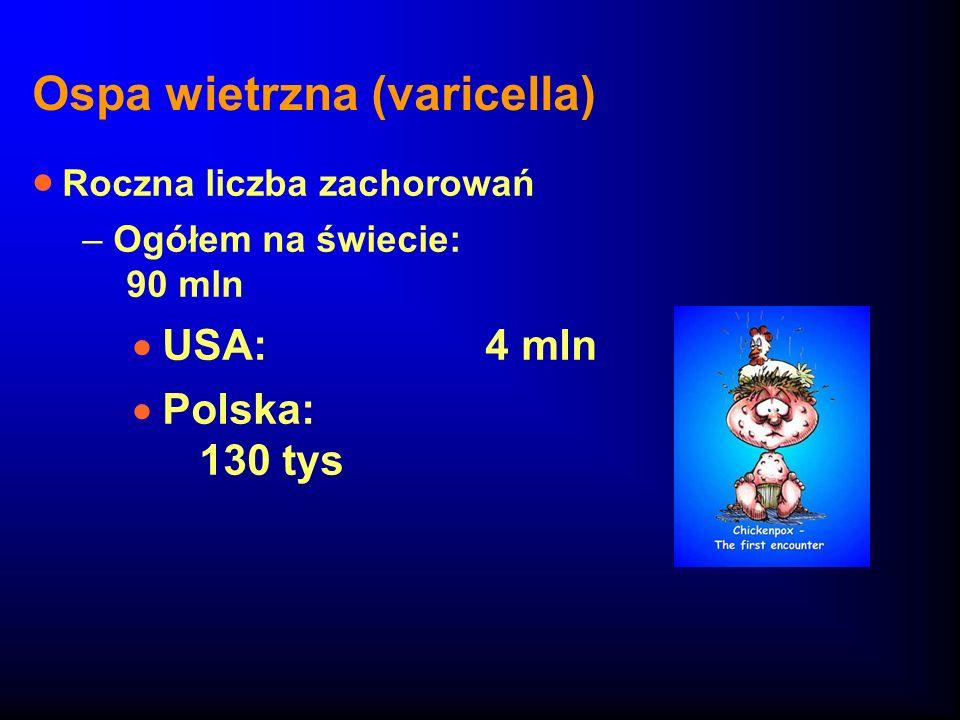 Ospa wietrzna (varicella)