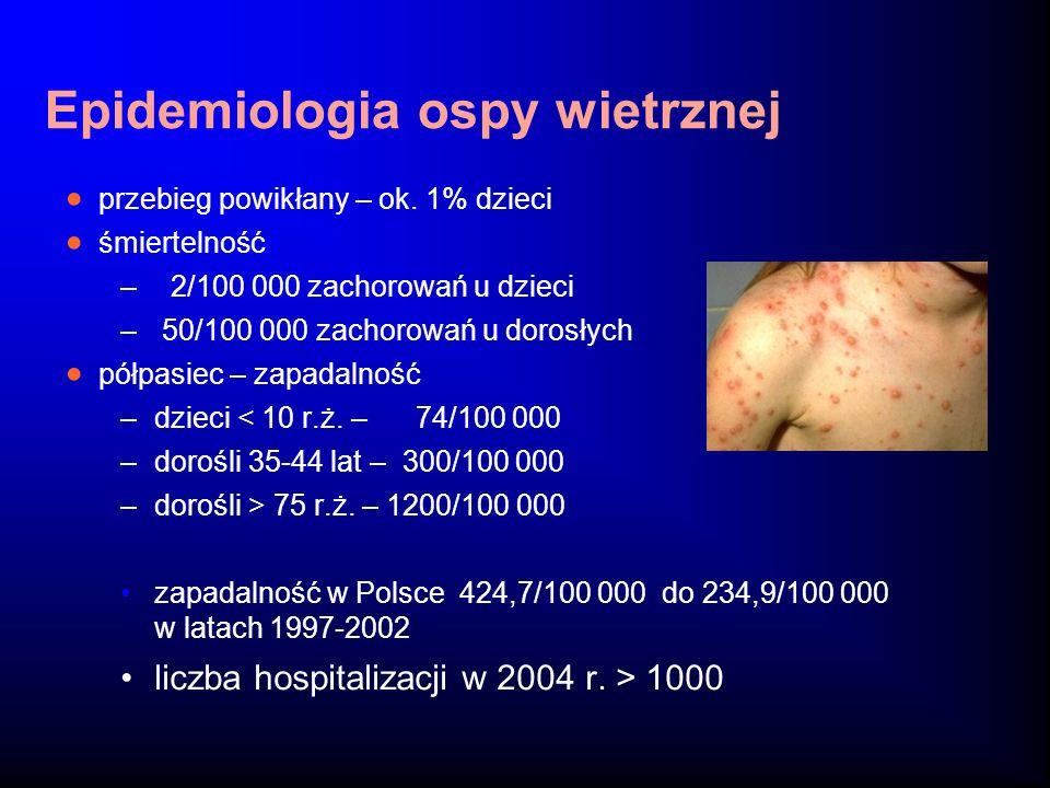 Epidemiologia ospy wietrznej
