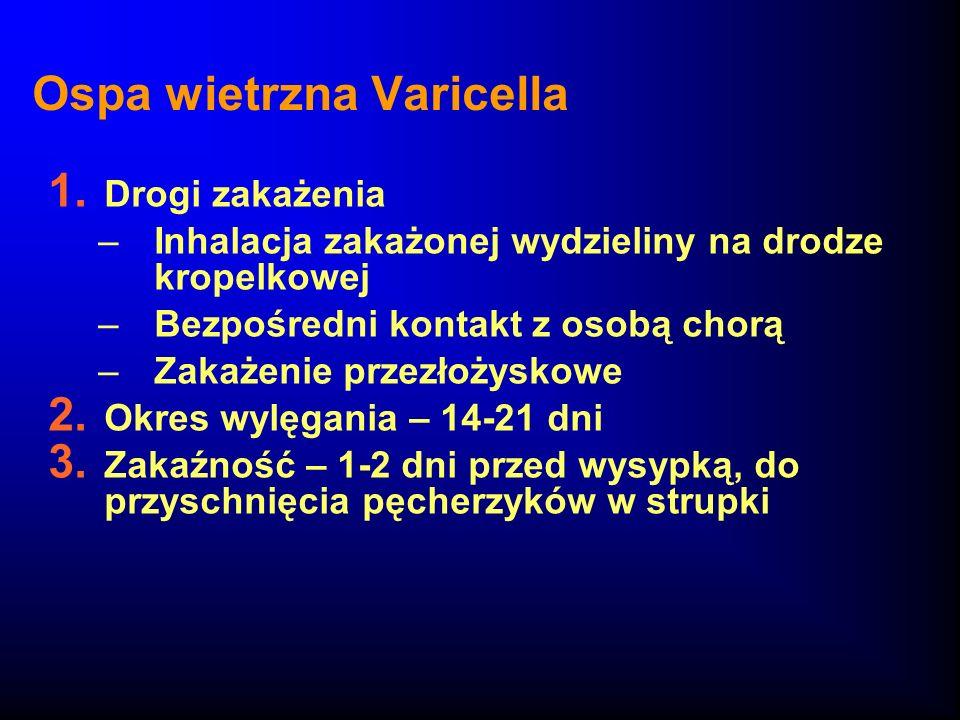Ospa wietrzna Varicella