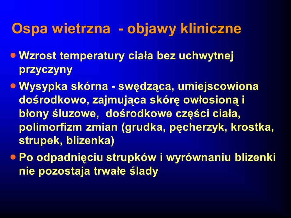 Ospa wietrzna - objawy kliniczne