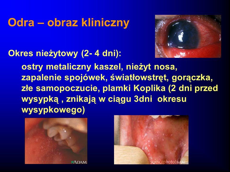 Odra – obraz kliniczny Okres nieżytowy (2- 4 dni):