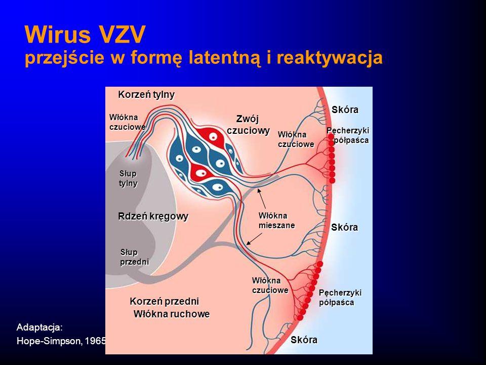 Wirus VZV przejście w formę latentną i reaktywacja