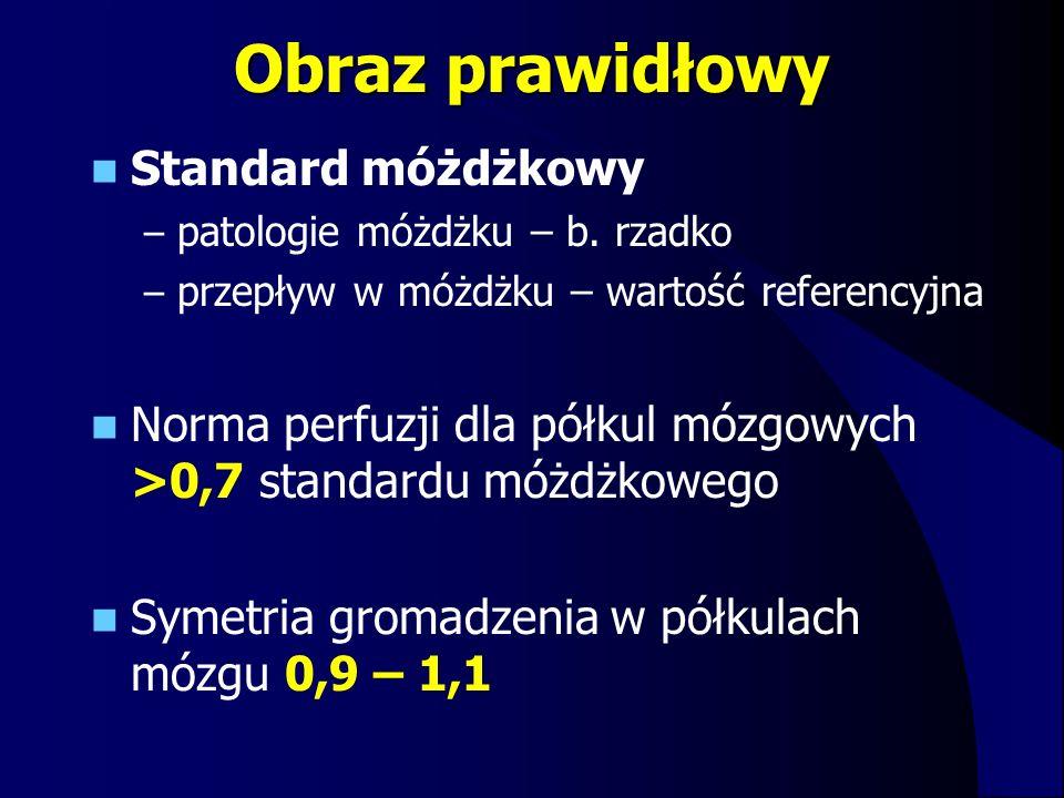Obraz prawidłowy Standard móżdżkowy