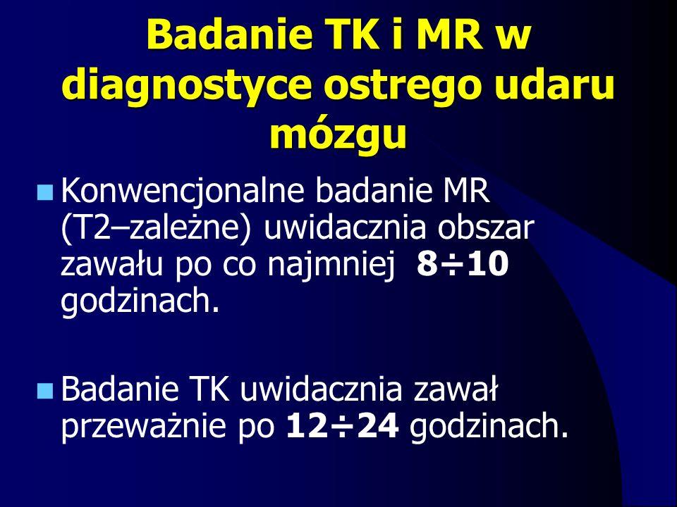 Badanie TK i MR w diagnostyce ostrego udaru mózgu