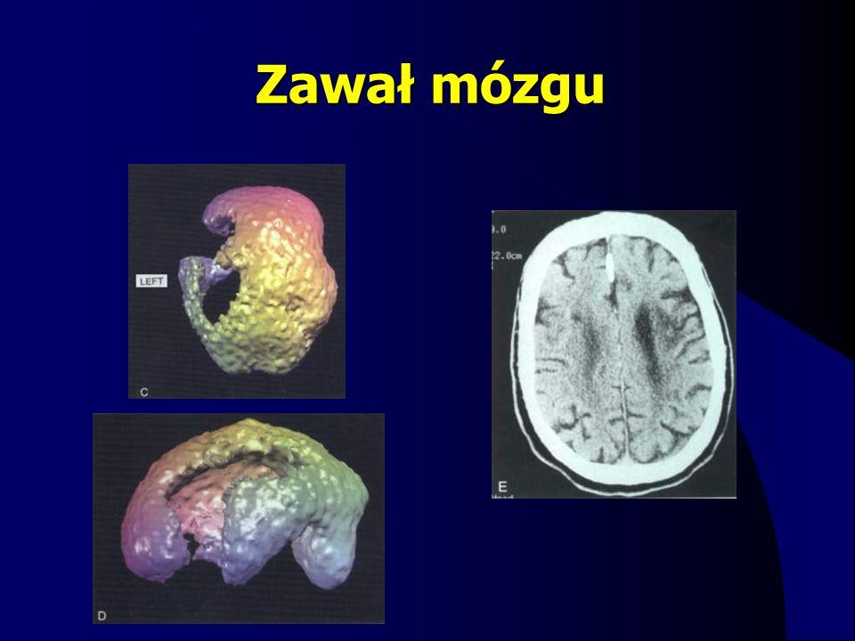 Zawał mózgu
