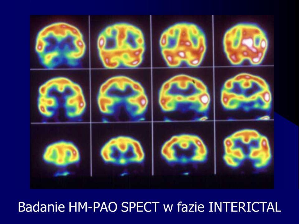 Badanie HM-PAO SPECT w fazie INTERICTAL
