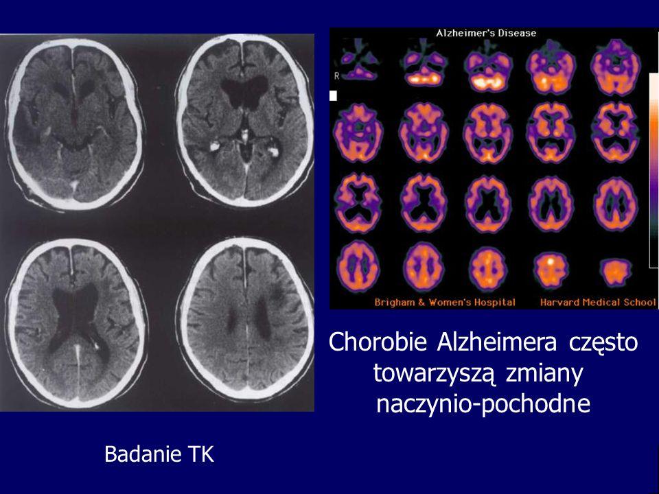 Chorobie Alzheimera często