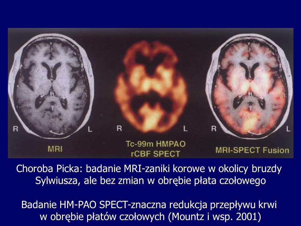 Choroba Picka: badanie MRI-zaniki korowe w okolicy bruzdy