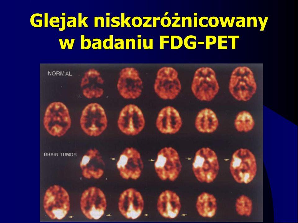 Glejak niskozróżnicowany w badaniu FDG-PET
