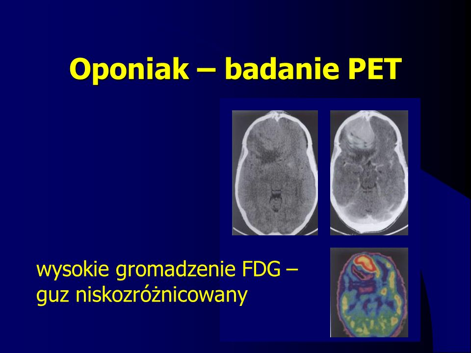 Oponiak – badanie PET wysokie gromadzenie FDG – guz niskozróżnicowany