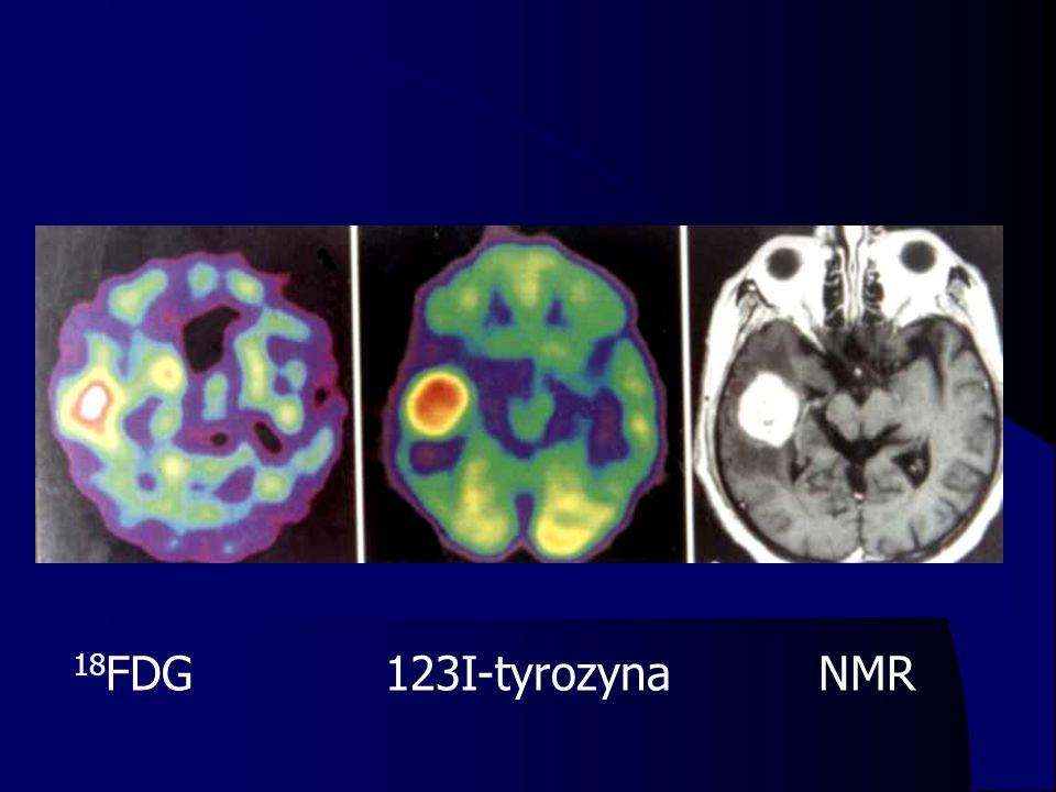 18FDG 123I-tyrozyna NMR