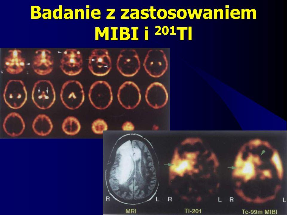 Badanie z zastosowaniem MIBI i 201Tl