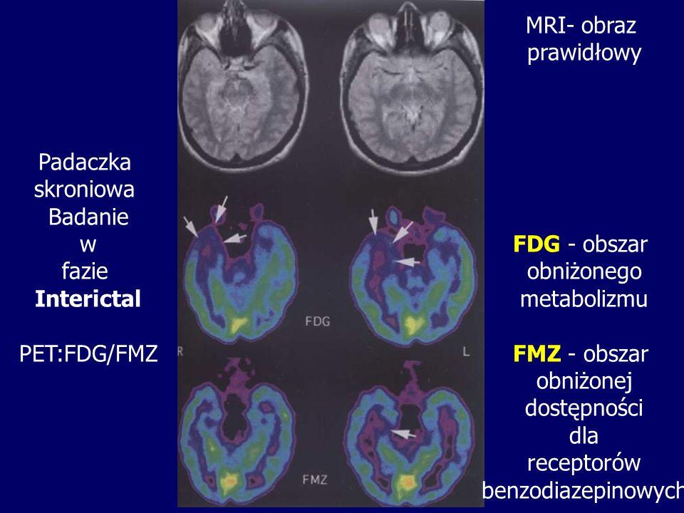 Padaczka skroniowa. Badanie. w. fazie. Interictal. PET:FDG/FMZ. MRI- obraz. prawidłowy. FDG - obszar.