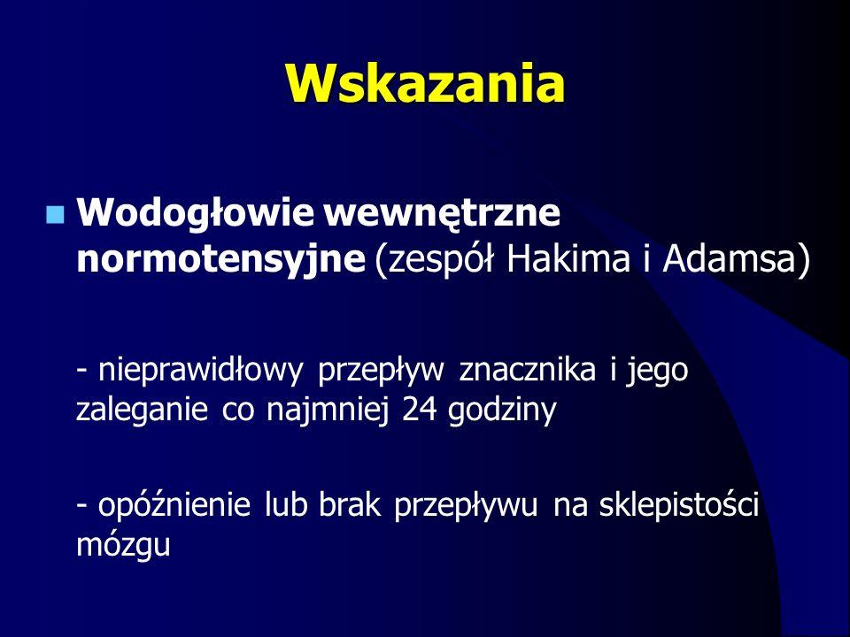 Wskazania Wodogłowie wewnętrzne normotensyjne (zespół Hakima i Adamsa)