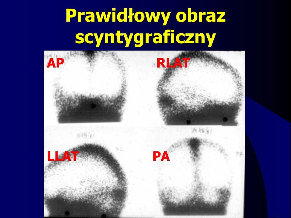 Prawidłowy obraz scyntygraficzny