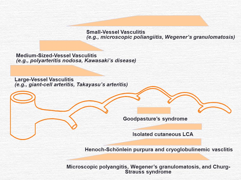 Small-Vessel Vasculitis