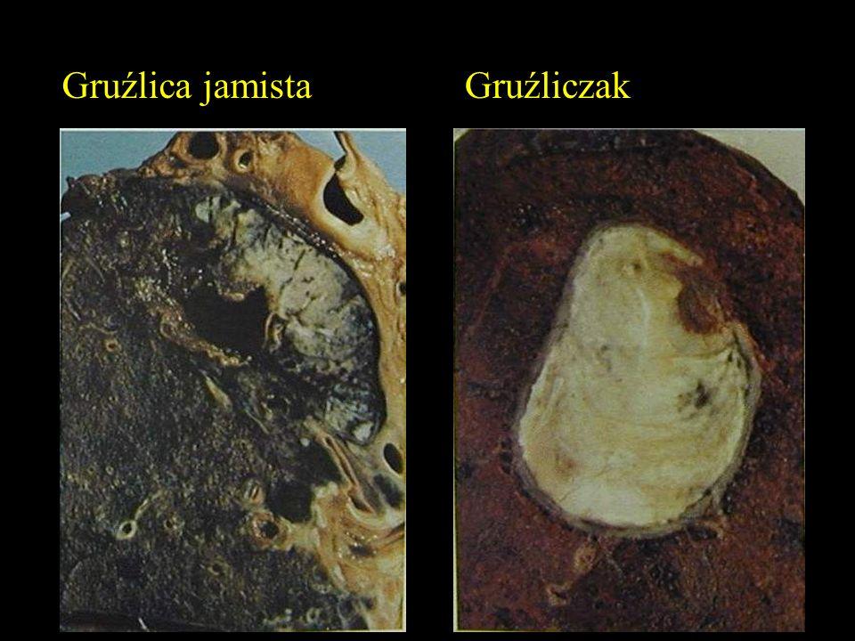 Gruźlica jamista Gruźliczak