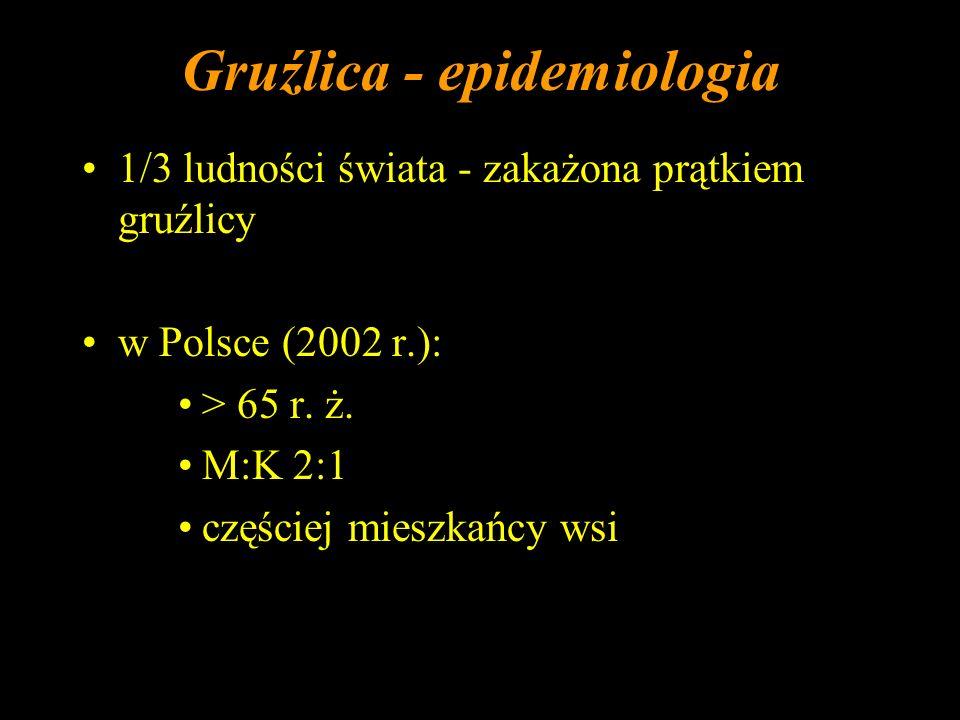 Gruźlica - epidemiologia