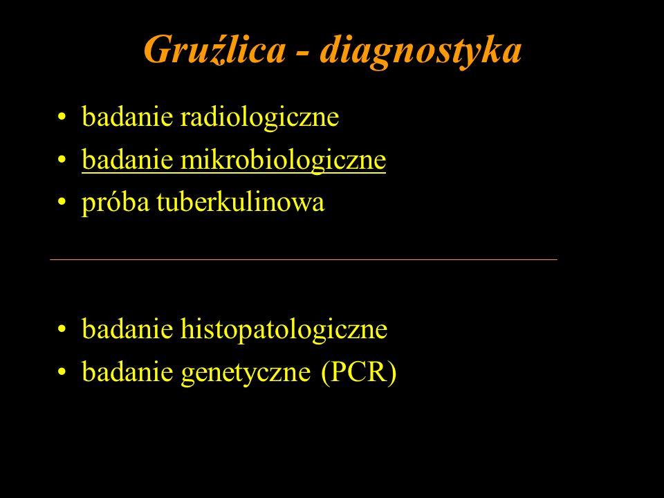 Gruźlica - diagnostyka